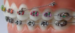 Miniimplanty ortodontyczne