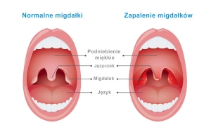 Migdałek gardłowy i związane z nim problemy